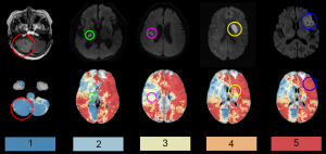 Multicenter project on post-stroke cognitive impairment published in The Lancet Neurology